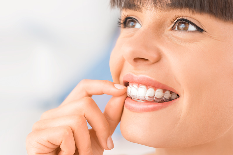 invisalign in Conway