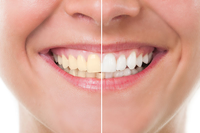 Teeth Whitening in Conway